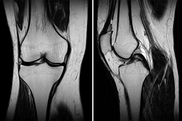 MRT Radiologie Amstetten
